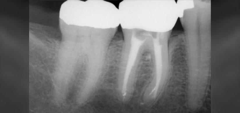 endodontics-1