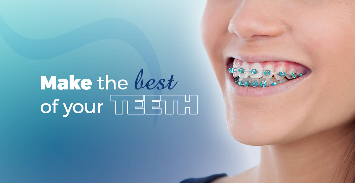 The best of your teeth